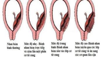 Plasenta rendah - Ibu hamil berisiko kelahiran pramatang, tidak dapat melahirkan secara normal?