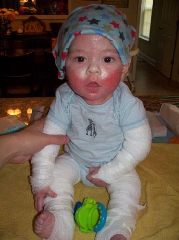 O bebê recém-nascido tem eczema severo e uma história maravilhosa quando uma mãe salva seu bebê das mãos da morte
