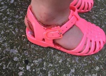 A mãe ficou frustrada quando os sapatos de plástico causaram os ferimentos nas pernas do filho.