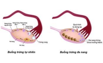 ¿Poder quedar embarazada de ovarios poliquísticos?