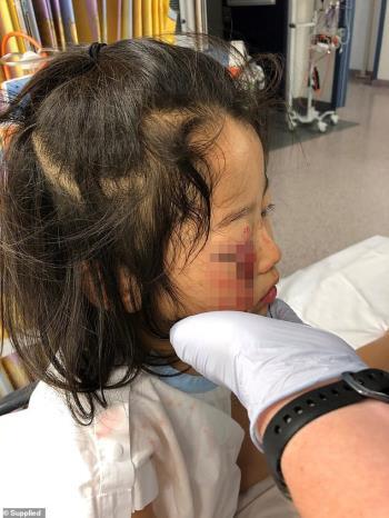 A menina rasgou as pálpebras, quase ficou cega porque caiu em um cabide de roupas no supermercado