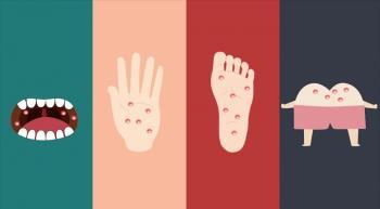 So verhindern Sie Hand-, Maul- und Klauenseuche - Die Krankheit verursacht bei Kindern leicht Komplikationen