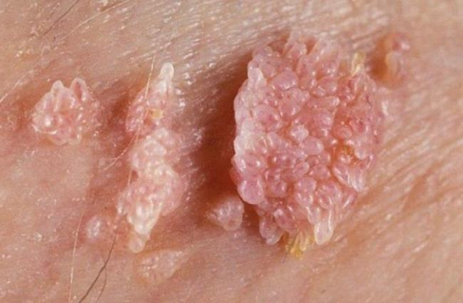Identify female genital warts and how to treat them